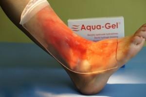 Opatrunek hydrożelowy Aquagel 22 cm x 28 cm